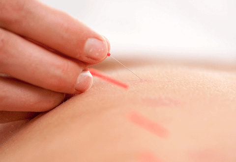 acupuncture against anxiety